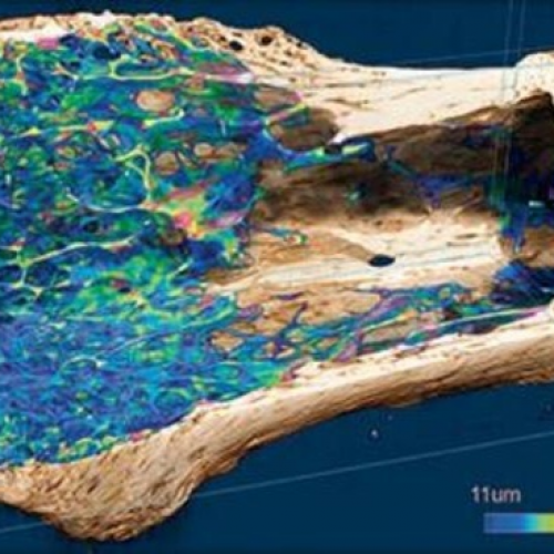 bone regeneration in three dimensions
