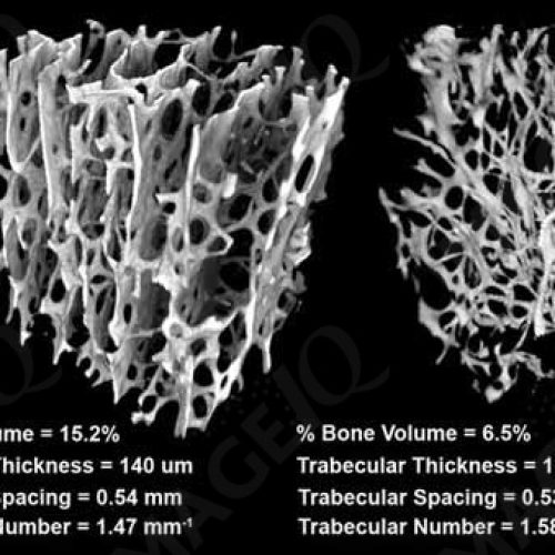 Human Bone Core MicroCT